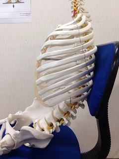 a悪い姿勢骨模型